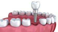 Despite dental advances